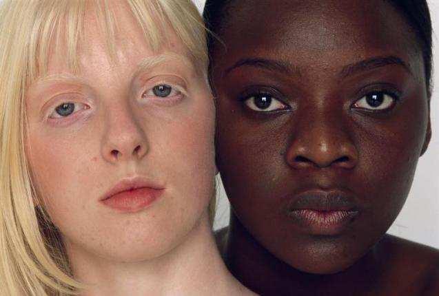 Интересные факты об альбинизме