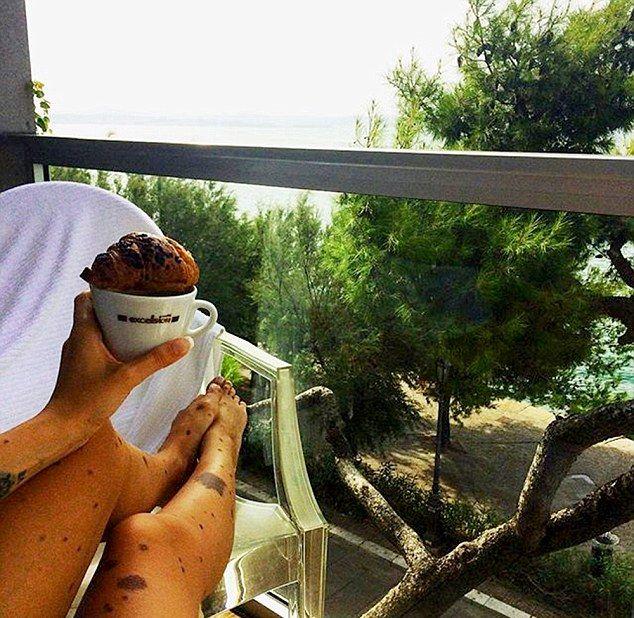 Девушка-далматин стала звездой Инстаграма