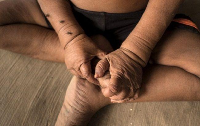 4-летнего мальчугана запросто можно спутать с пенсионером