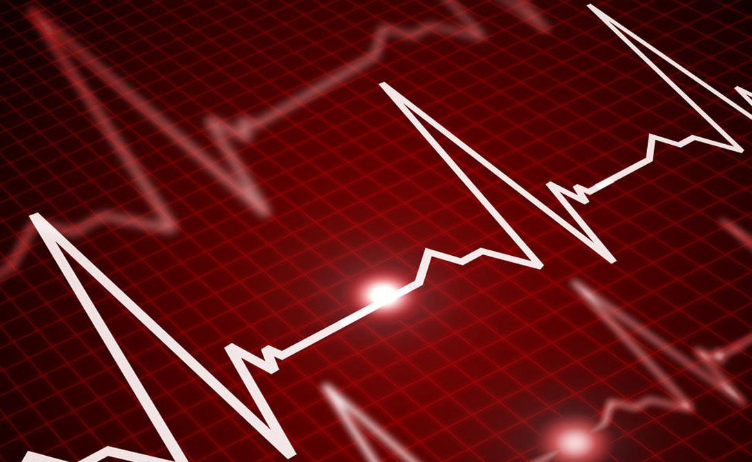 Как быстро замедлить пульс