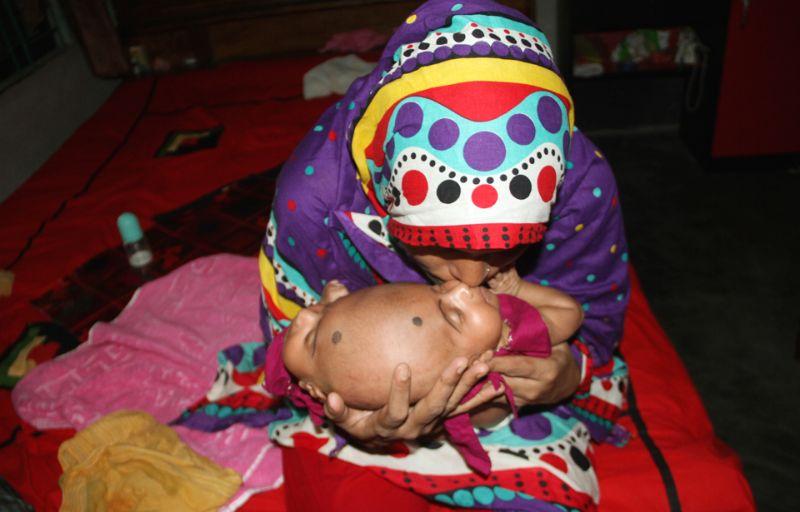 В Бангладеш родились близнецы с одной головой на двоих