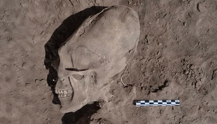 10 исторических примеров деформации черепов древними людьми