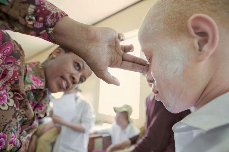 Приюты для альбиносов в Танзании защищают их от охотников на людей