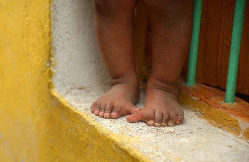 Индийская семья из 25 человек, у которых по 12 пальцев на руках и ногах