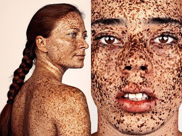 Уникальные люди с необычным цветом кожи