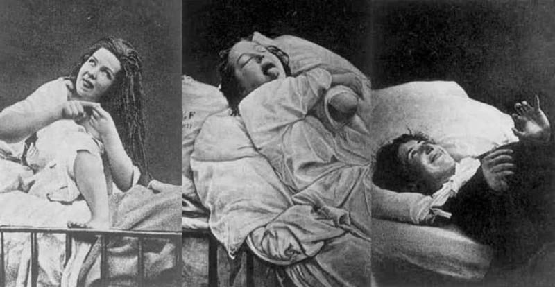 Лоботомия: немного истории и страшных фотографий