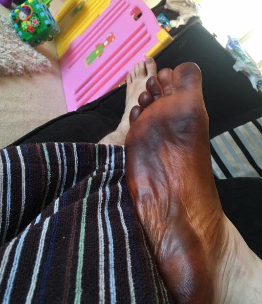 Жена использовала носок мужа для нанесения искусственного загара