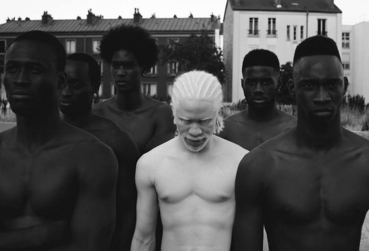20 людей-альбиносов, поражающих своей внешностью