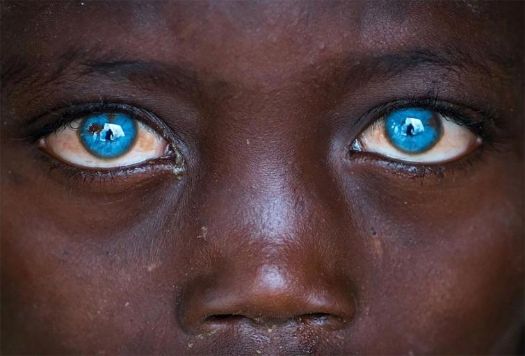 Невероятные глаза африканского мальчика, подаренные ему болезнью