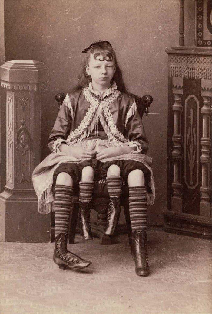 Самые знаменитые персонажи цирка уродцев