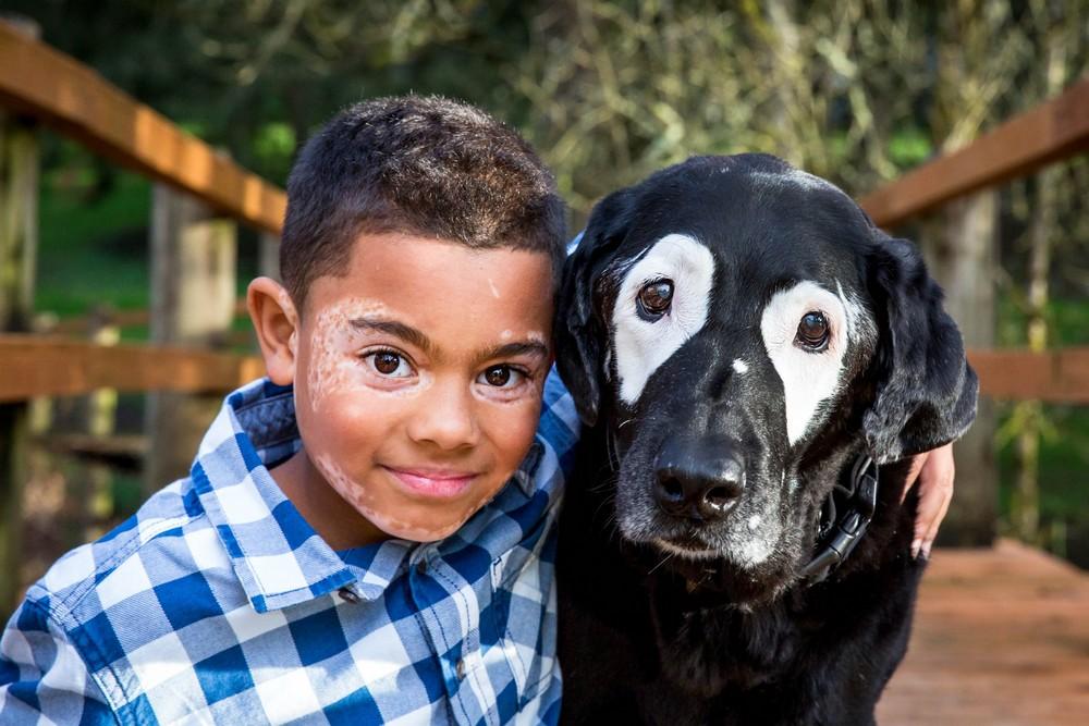 Мальчик с редким заболеванием встретил друга по несчастью