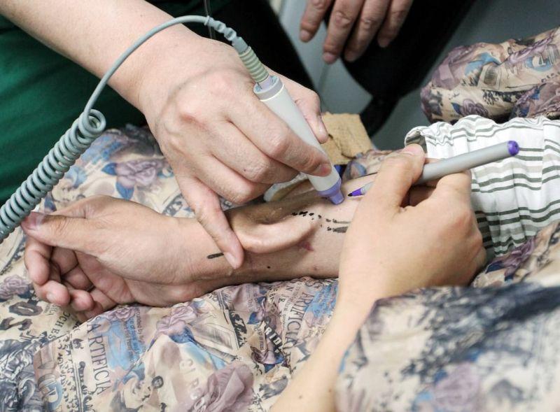 Врачи успешно пересадили пациенту ухо, выращенное у него на руке
