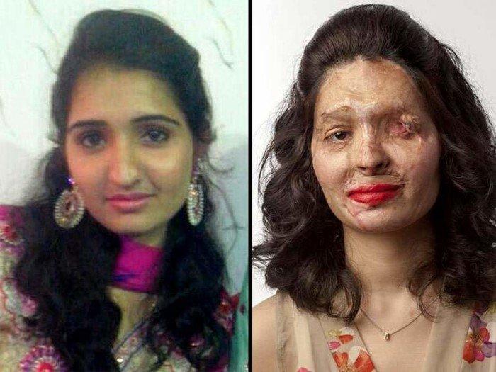 Реальные истории изуродованных девушек, которых облили кислотой
