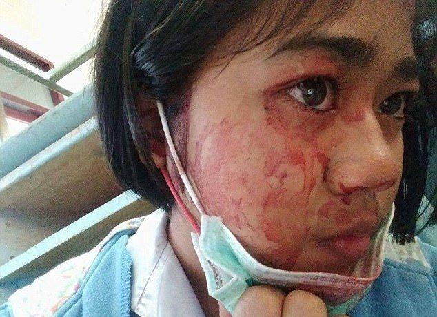 Семилетняя тайская девочка плачет кровавыми слезами