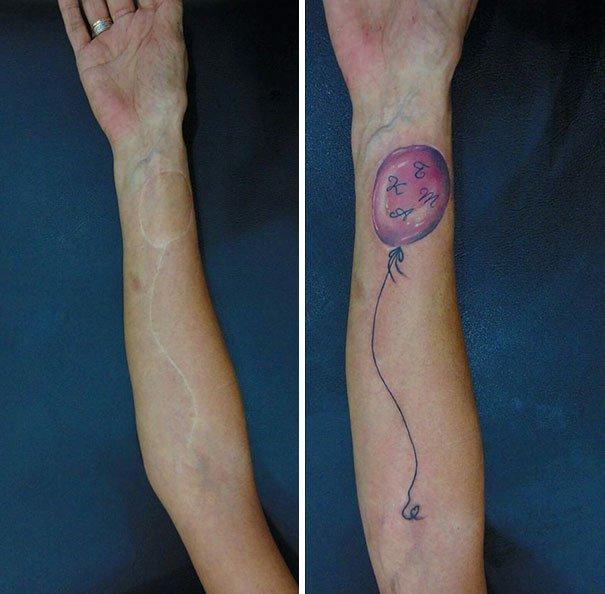 Татуировки, которые превращают шрамы в произведения искусства