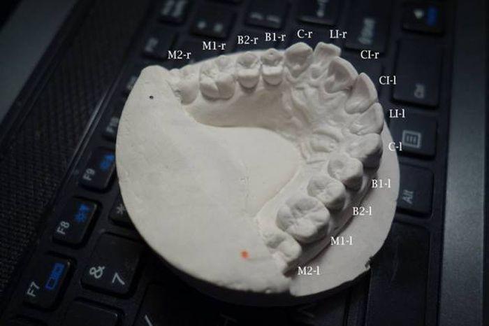 Парень выровнял зубы с помощью напечатанных на 3D-принтере брекетов