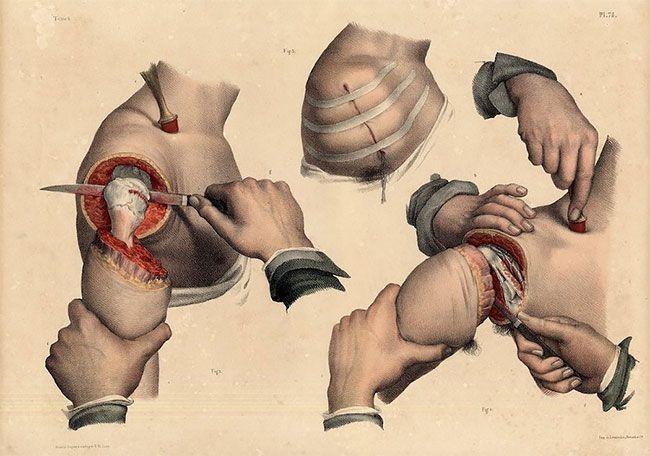 Жуткие картинки медицинских процедур начала XIX века