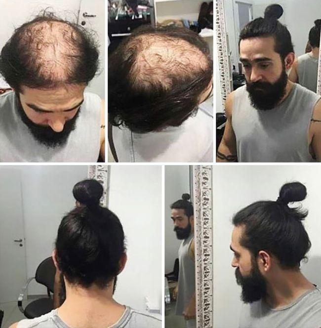 Как длинные волосы позволяют скрыть проблему выпадения волос