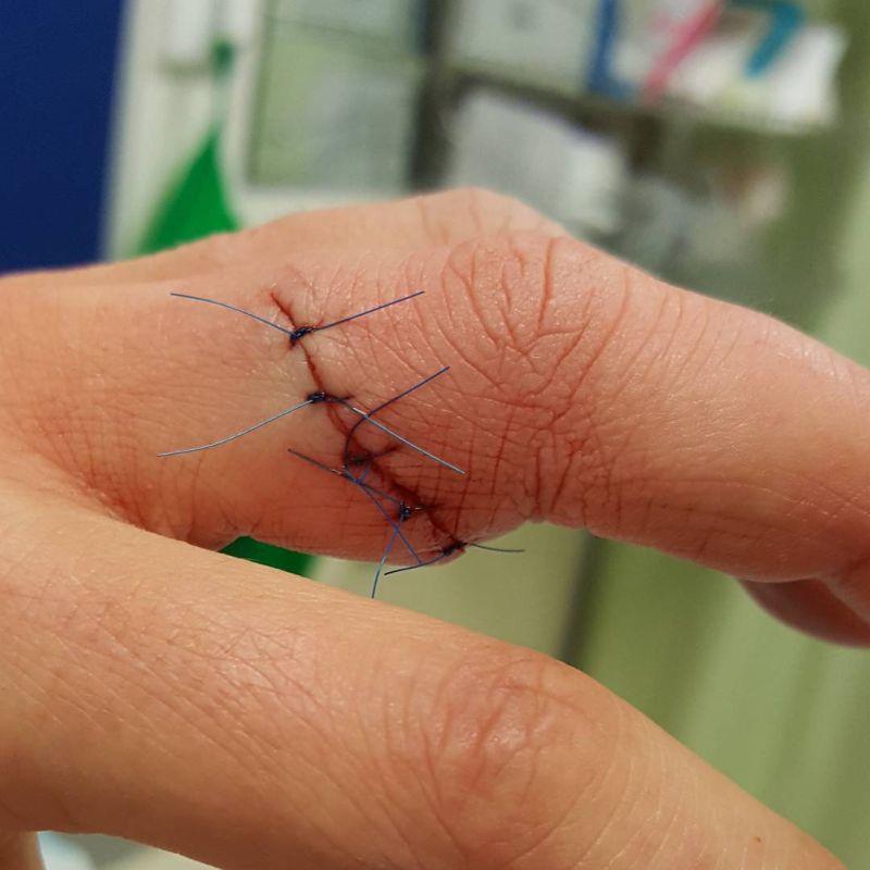 Ранение от авокадо - частая травма среди сторонников ЗОЖ