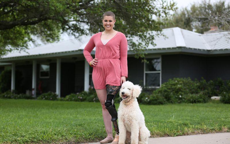 Хирурги приспособили лодыжку девушки на место коленного сустава