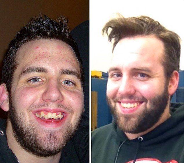 На что способны брекеты: до и после