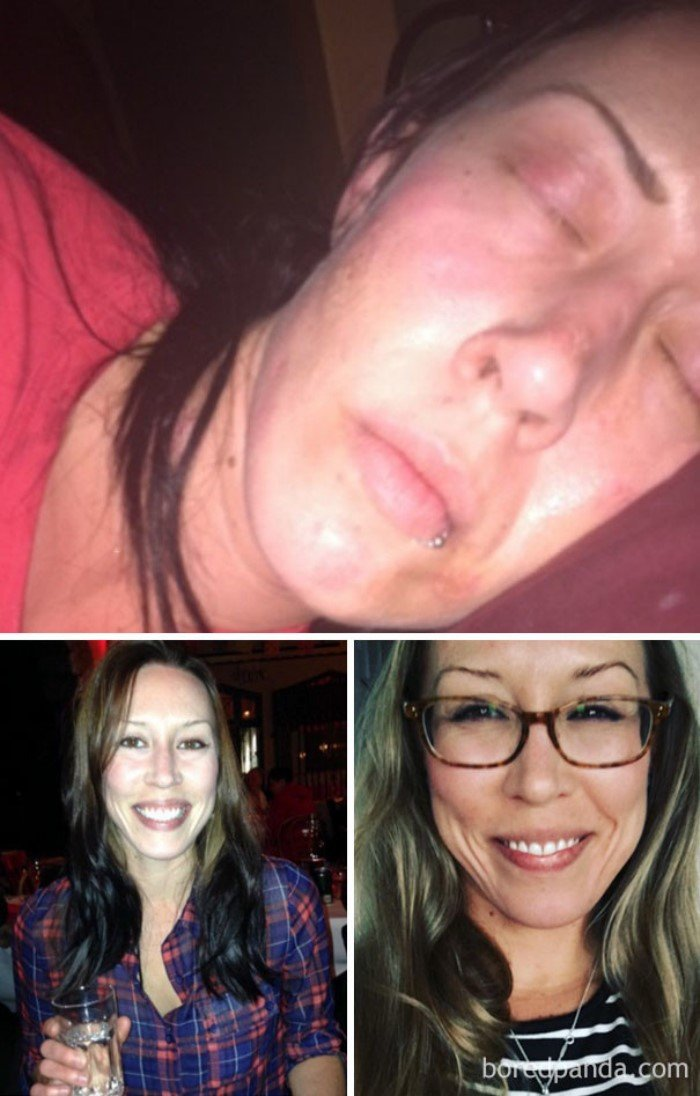 Наркозависимость: до и после