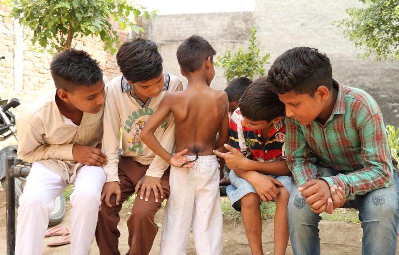 Индийского мальчика с хвостом называют богом-обезьяной