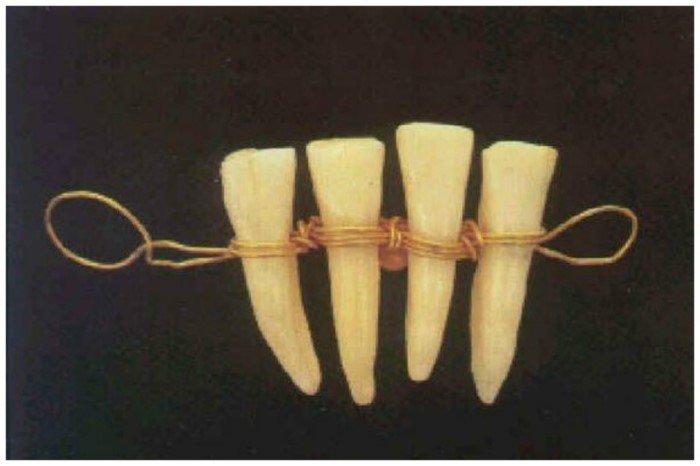 Что делали стоматологи прошлого
