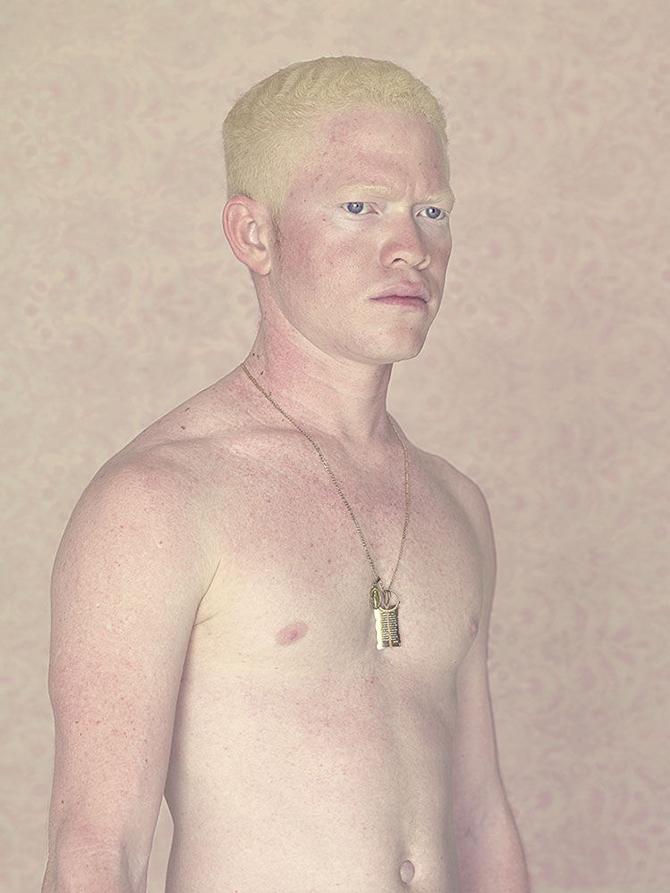 Альбиносы в фотопроекте Густаво Ласерде