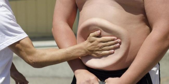 15 уникальных особенностей человеческого тела