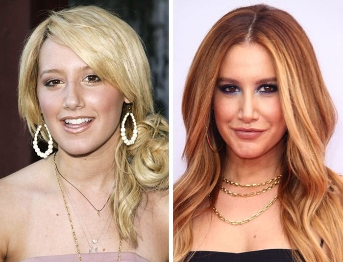 Знаменитости до и после пластических операций