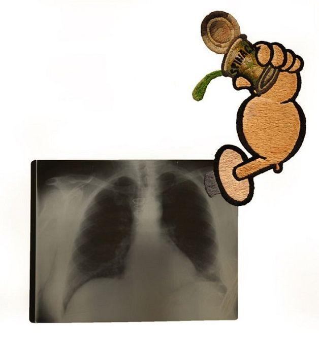 Рентгеновские снимки, дополненные вышивкой