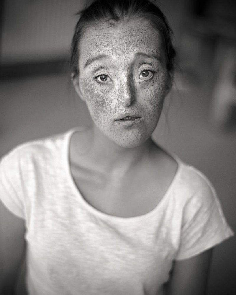 Немка с расщелиной лица стала одной из самых востребованных моделей