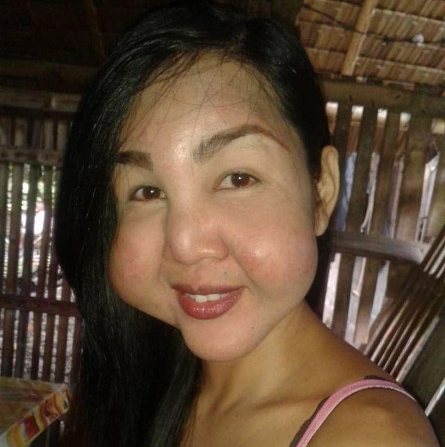 Подпольный косметолог изуродовала лица девушек