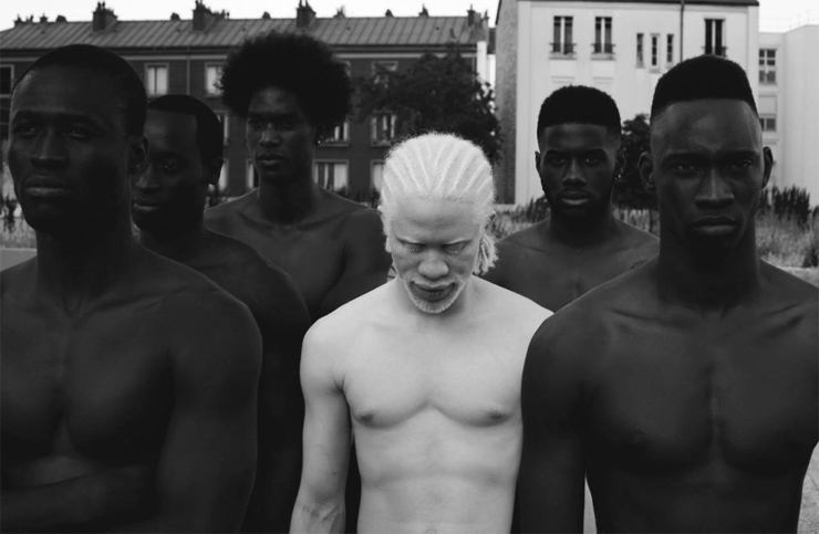Интересные факты об альбиносах