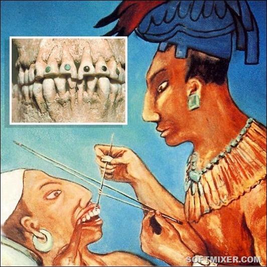 Как лечили зубы на Руси