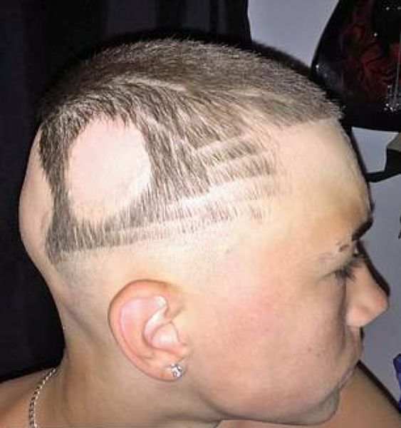 Школьник с лысиной решил свою проблему с помощью татуировки