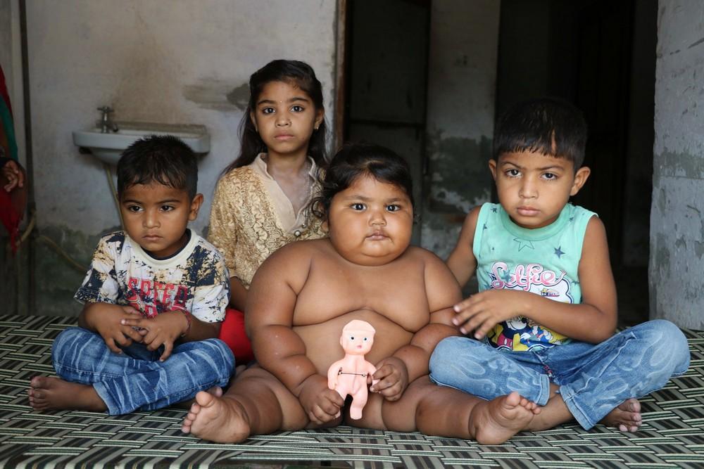 16-месячная девочка весит 25 кг
