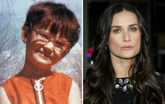 Знаменитости, которым в школьные годы досталось из-за внешности