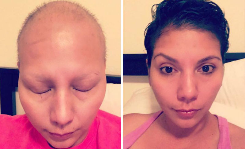 Люди, которые победили рак, на снимках до и после