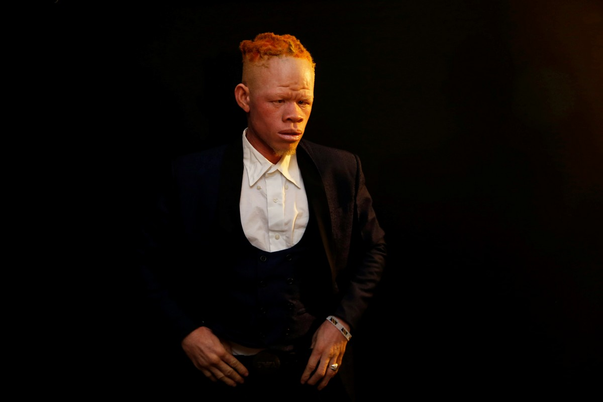 Конкурс красоты для людей с альбинизмом 2018