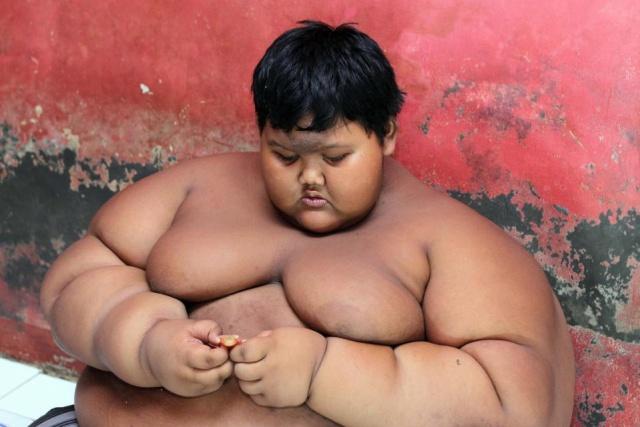 12-летний индонезийский подросток похудел на 95 килограмм