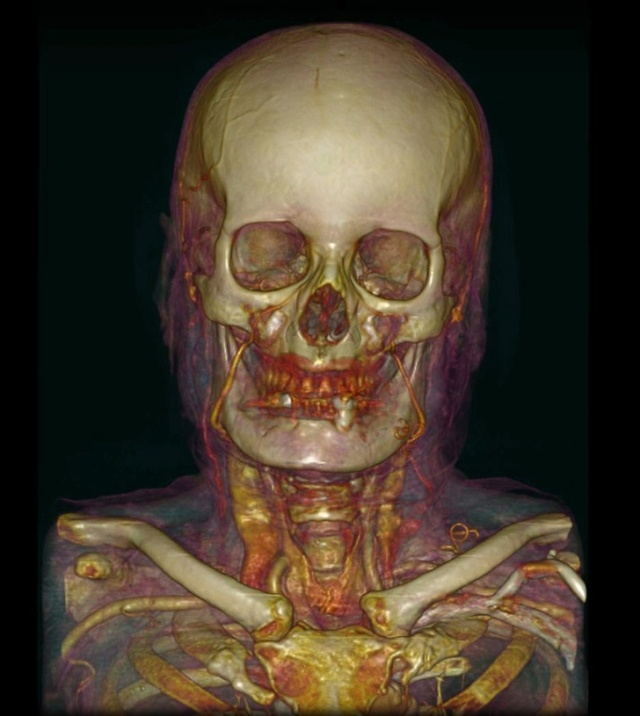 Взгляд на тело человека при помощи медицинских приборов