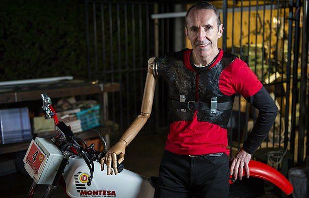 55-летний механик без руки позаимствовал конечность у манекена