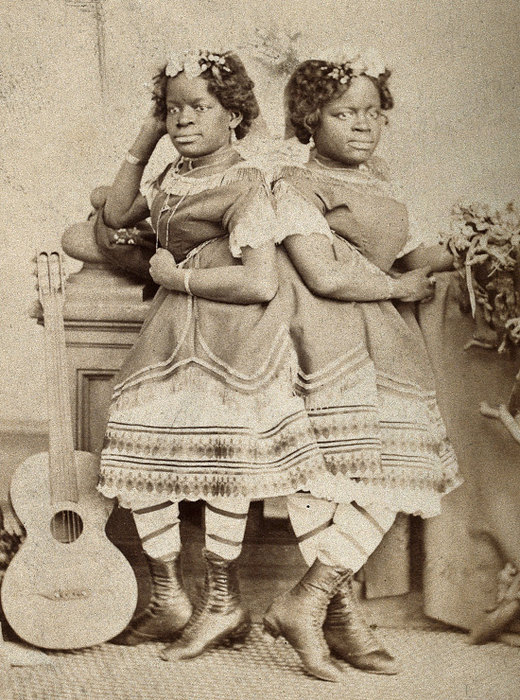 Истории счастливых сиамских близнецов