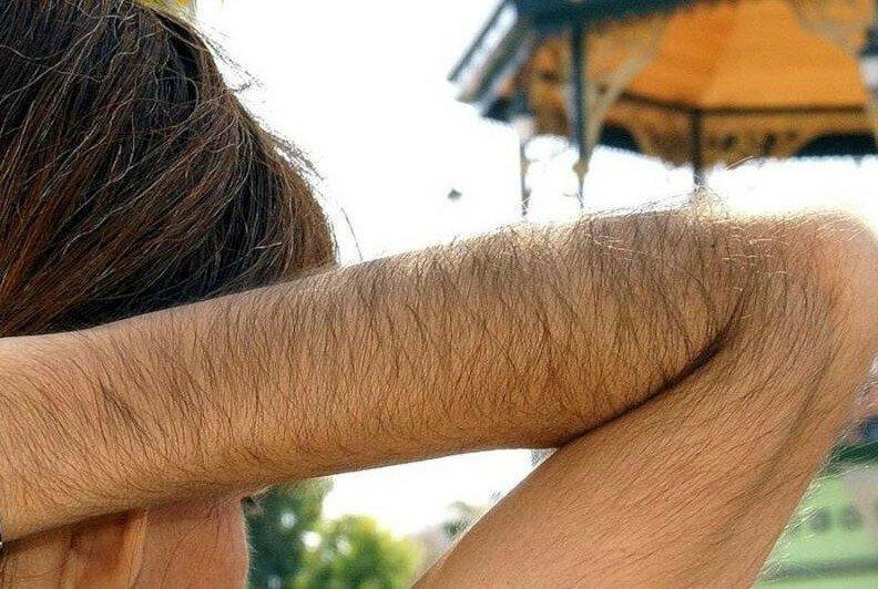 Девушки с очень волосатыми руками: зато зимой не холодно