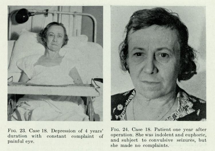 Золотая эра лоботомии: из истории медицины