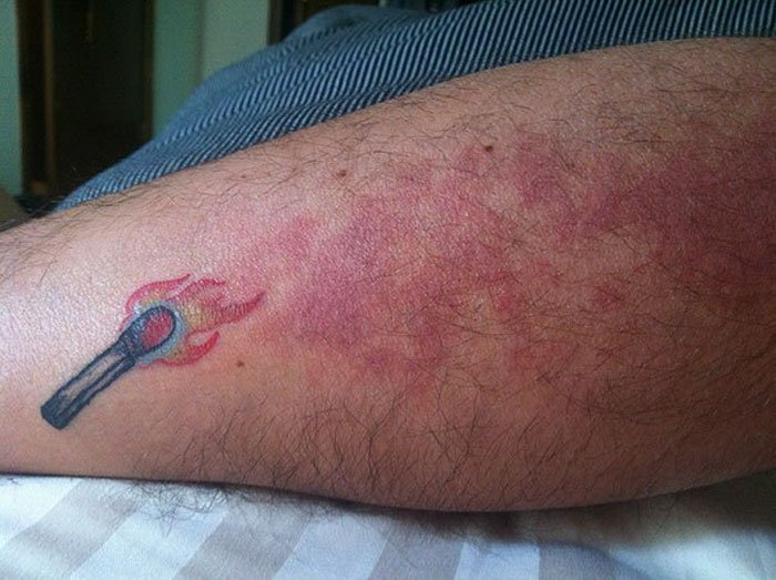 Креативные татуировки, которые скрывают шрамы