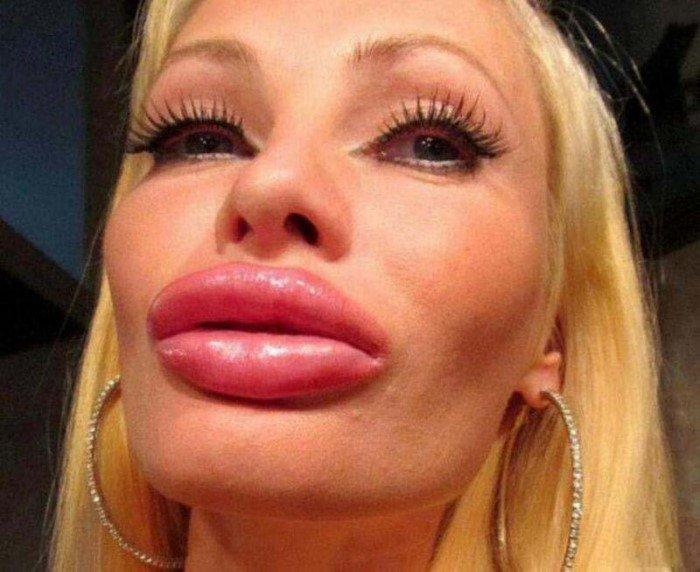 10 девушек с очень большими губами