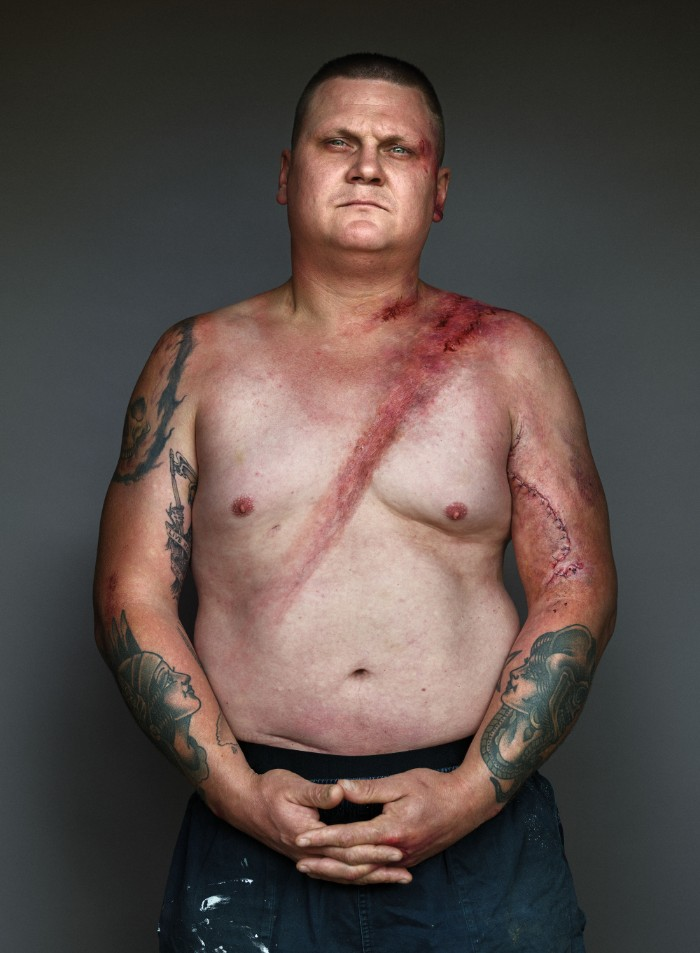 Портреты мужчин, которые выжили в аварии благодаря ремню безопасности